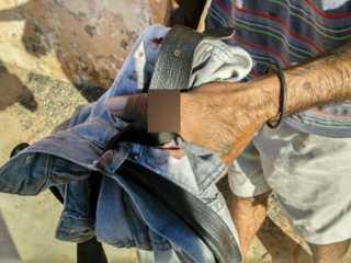 Embriagado, morador de Botucatu (SP) atea fogo no próprio cachorro