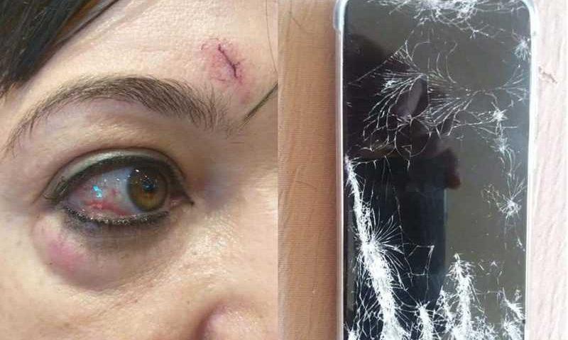A ativista Andra Naves afirma ter sido agredida após filmar venda irregular de animais — Foto: Arquivo pessoal