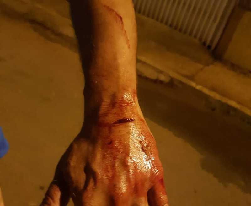 Homem ficou ferido após ataque de cachorro — Foto: Arquivo pessoal